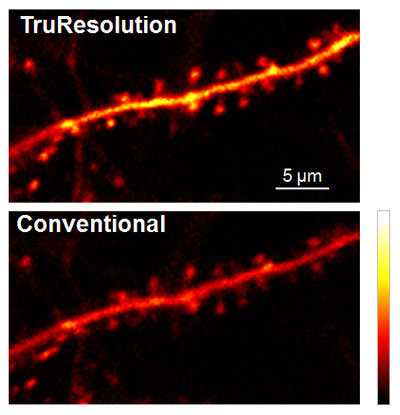 Figure 4: In vivo observation of neuronal dendrite in a live mouse brain (Thy1-YFP-H mouse, sensory cortex) acquired at 400 µm depth, with excitation at 960 nm.