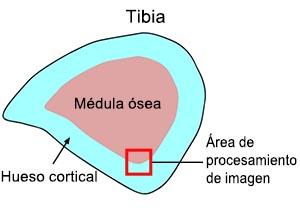 Figura 1: Seccionamiento transversal de la tibia
