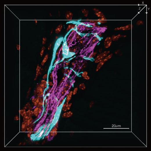 図1:脛骨の端部にある小孔を、血管と絡み合いながら貫入している痛覚神経(3D画像) 痛覚神経(EYFP, シアン)、血管(AlexaFluor 594,マゼンタ)、核(DAPI, オレンジ)