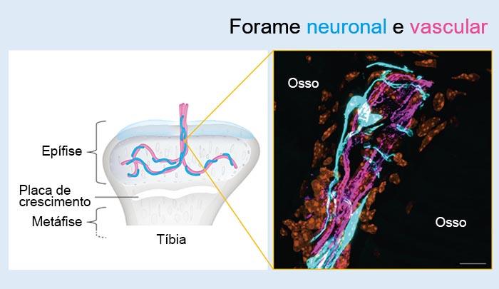 Figura2: Forame neuronal e vascular