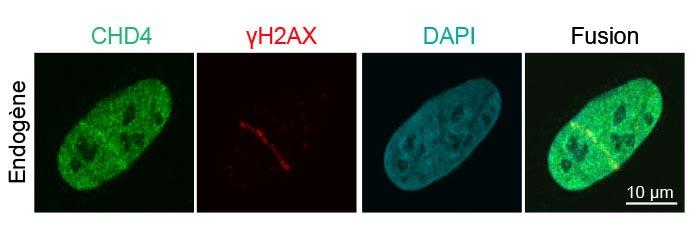 Figure3: Recrutement de protéines endogènes de réparation des lésions de l'ADN lors des ruptures des brins d'ADN