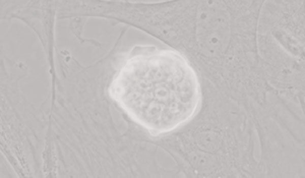 Phasenkontrastmikroskopie