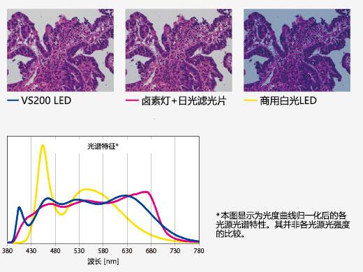 Bright LED Lighting Optimized for Pathology and Cytology