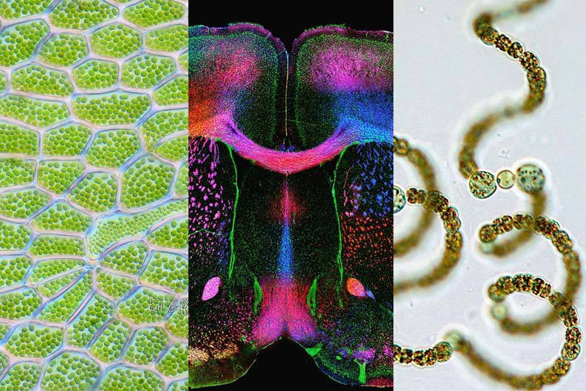 Top microscope images for September 2021