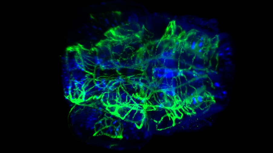 Cleared Zebrafish larvae head vascular and neural staining captured with an Alpha3 light sheet fluorescence microscope