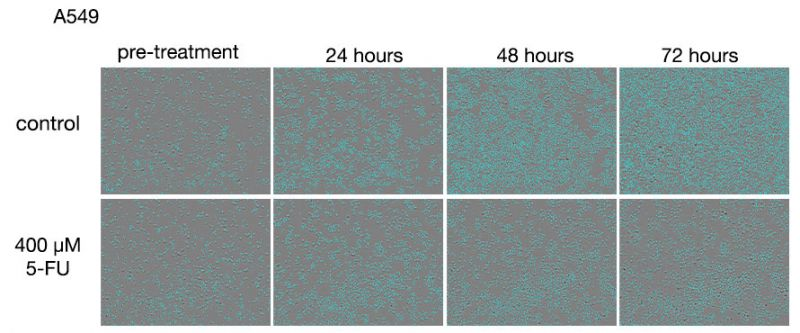 Figure 1. Images of A549 cells after treatments with 5-FU.