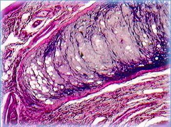Epiglottis Elastic Cartilage Olympus Life Science
