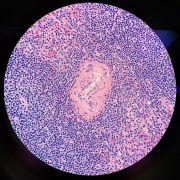 histology stained spleen slice
